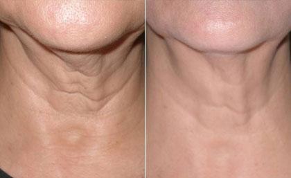 Radiofreq neck
